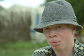 Richard mit seinem Hut, der ihn vor der Sonne schützt